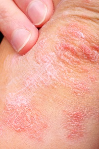 Psoriasis in Manalapan, NJ