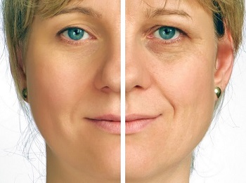 Woman with and without wrinkles